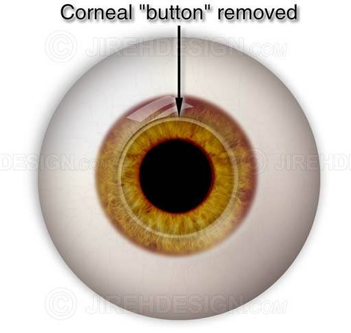 Corneal button removed during pkp #suco0001