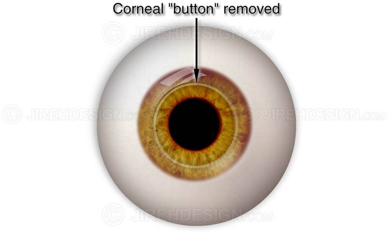 Corneal button removed during pkp