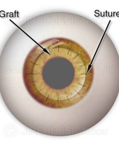 Corneal graft with sutures