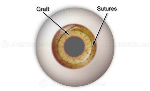 Corneal graft with sutures #suco0002