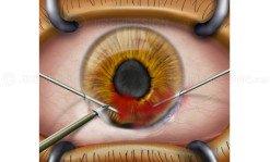 Aspiration of anterior chamber hemorrhage