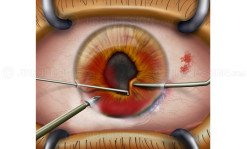 Cornea surgery for eye injury