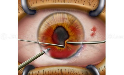 Cornea surgery for eye injury #suco0006
