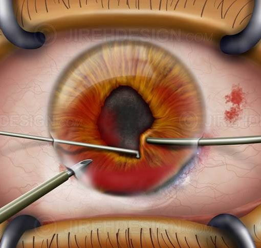 Cornea surgery for eye injury #suco0006