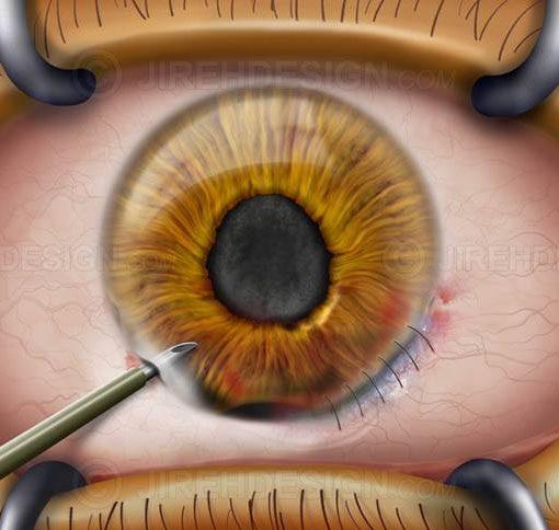 Traumatic injury cornea surgery #suco0007
