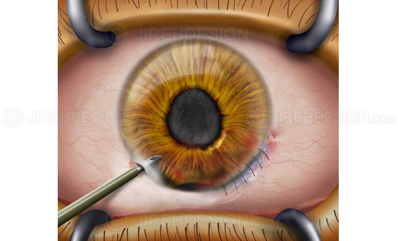 Traumatic injury cornea surgery