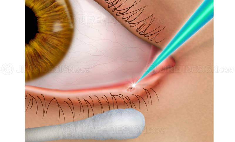 Dry eye syndrome treatment with laser