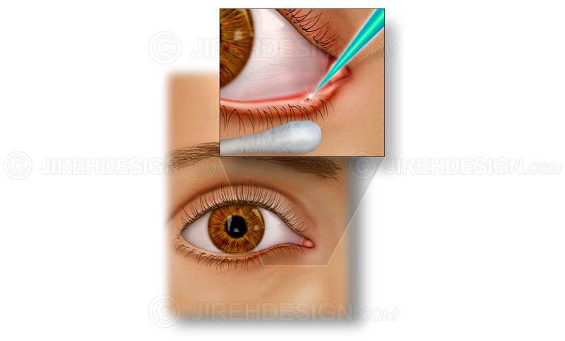 Laser punctal occlusion for dry eye syndrome #sude0002