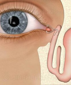 Implants to drain tears