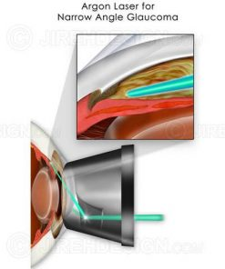 Argon laser for narrow angle glaucoma