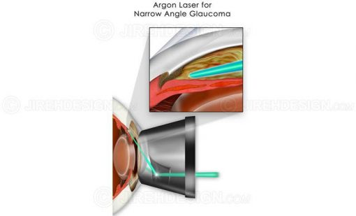 Argon laser for narrow angle glaucoma #sug0005