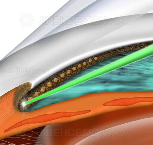 Selective laser trabeculoplasty #sug0010