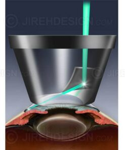 SLT laser for glaucoma