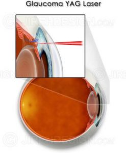 YAG laser for glaucoma