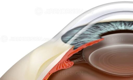 Bleb for glaucoma filtering #sug0020