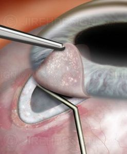Glaucoma surgery filtering bleb