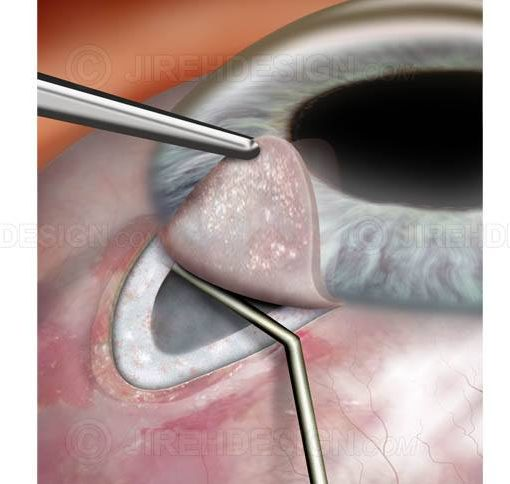 Glaucoma surgery filtering procedure #sug0024