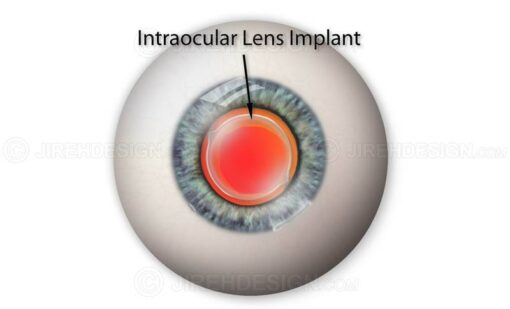 Intraocular lens implant #sui0006