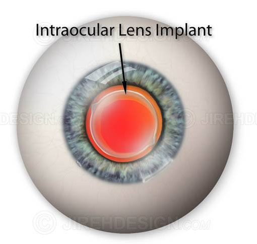 Intraocular lens implant #sui0006