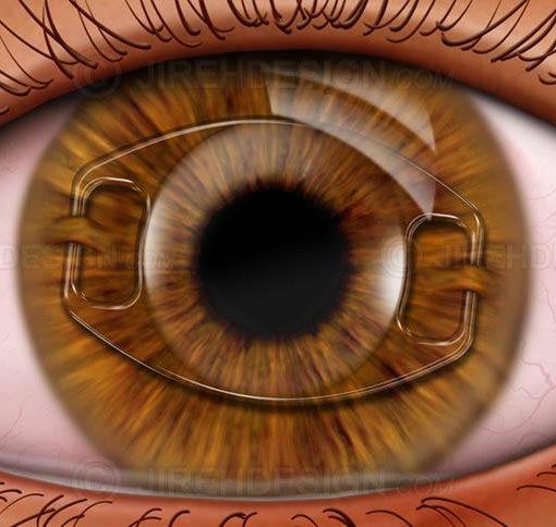 Iris fixated phakic IOL #sui0012