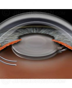 Piggyback IOLs in the eye after cataract surgery