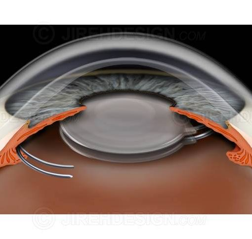 Piggyback IOLs in the eye after cataract surgery #sui0016