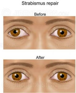 Crossed eyes correction surgery before and after
