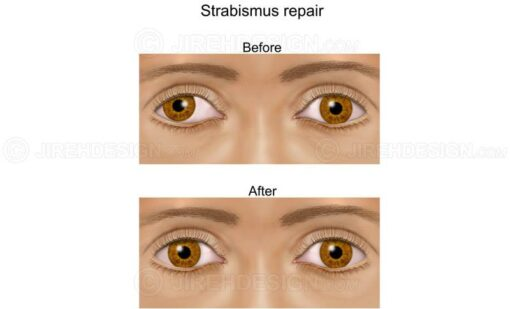Crossed eyes correction surgery before and after #sum0013