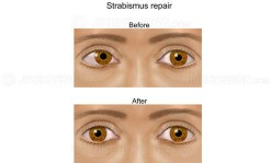 Strabismus repair surgery before and after