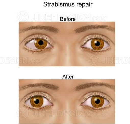 Strabismus repair surgery before and after #sum0014