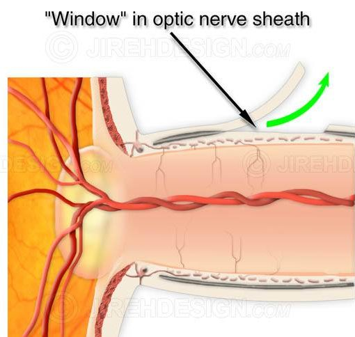 Optic nerve sheath fenestration surgery #suo0000