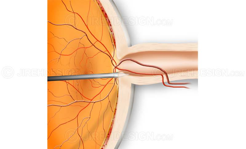 Optic nerve fenestration surgery #suo0002