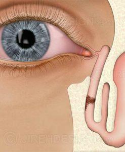 Lacrimal blockage