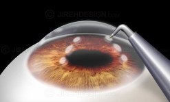 CK conductive keratoplasty CK eye surgery