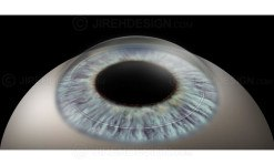 Intacs corneal rings for vision correction