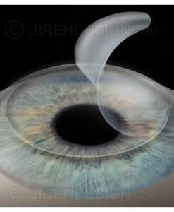Lasik corneal flap creation image