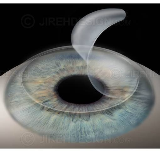 Lasik corneal flap creation image #surl0001
