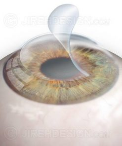 The corneal flap in Lasik vision correction surgery