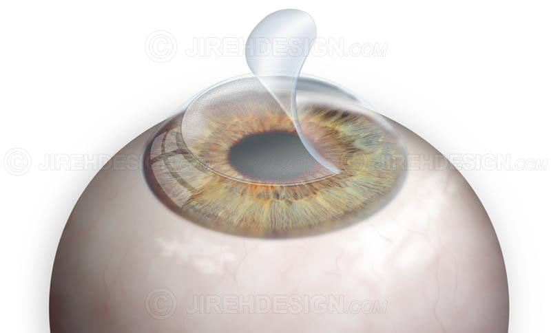 The corneal flap in Lasik vision correction surgery #surl0004