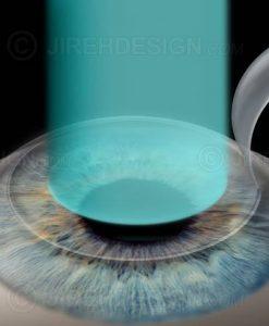 Lasik laser eye surgery for myopia - nearsightedness