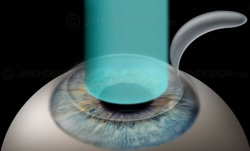 Lasik laser eye surgery for myopia – nearsightedness #surlm0003