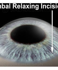 LRI limbal relaxing incisions