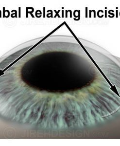 Limbal relaxing incision LRI for astigmatism