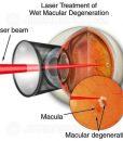 Laser treatment for wet macular degeneration