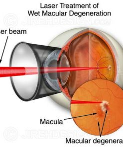 Laser treatment for wet macular degeneration