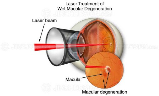 Laser treatment for wet macular degeneration #suvr0002