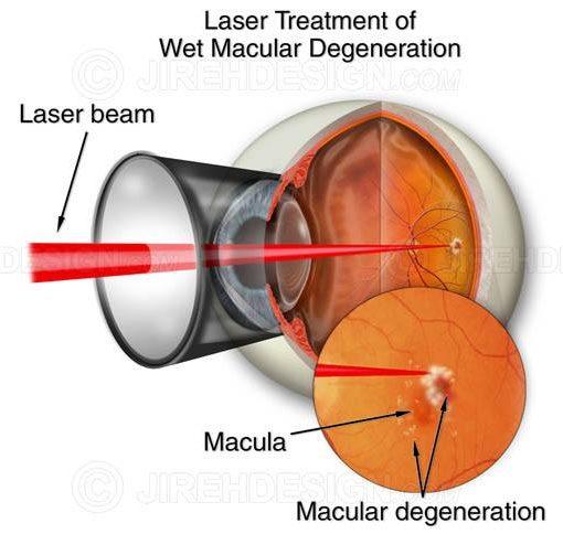 Laser treatment for wet macular degeneration #suvr0002
