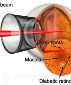 Laser retina surgery for background diabetic retinopathy