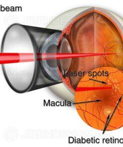 Laser retina surgery for background diabetic retinopathy