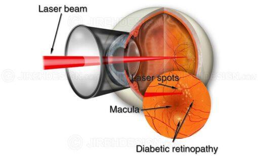 Laser retina surgery for background diabetic retinopathy #suvr0003